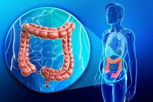 How to Improve Gut Microbiome
